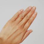 手湿疹を治したい、から1ヶ月。現在の手の状態。