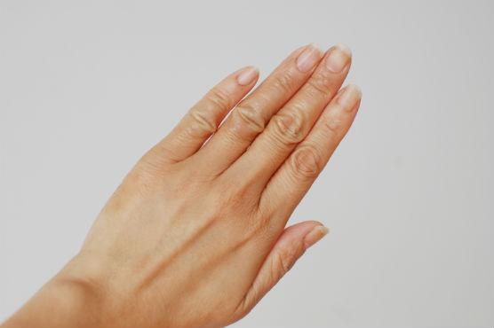 手湿疹ケア1ヶ月